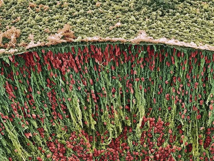 фетальные мозговые ткани