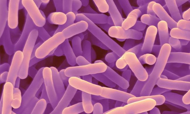 Bifidobacterium longum