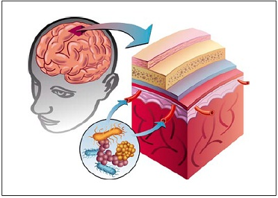 Brain_covers_inflam
