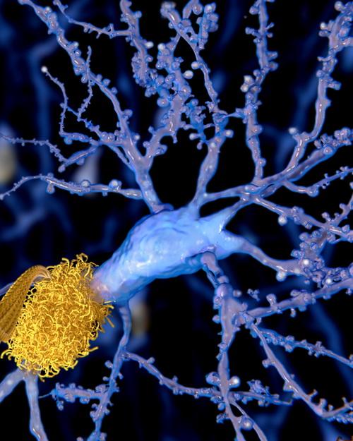 Оливковое масло экстра-отжима может предотвратить появление Альцгеймера s