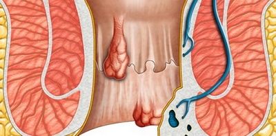 the-symptoms-hemorrhoids