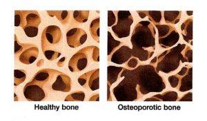 Ca_osteoporosis_slider