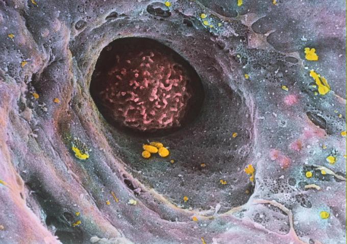 Monocyte1