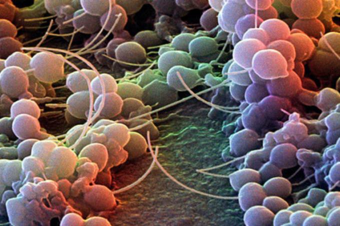 Staphylococcus_epidermidis_SEM