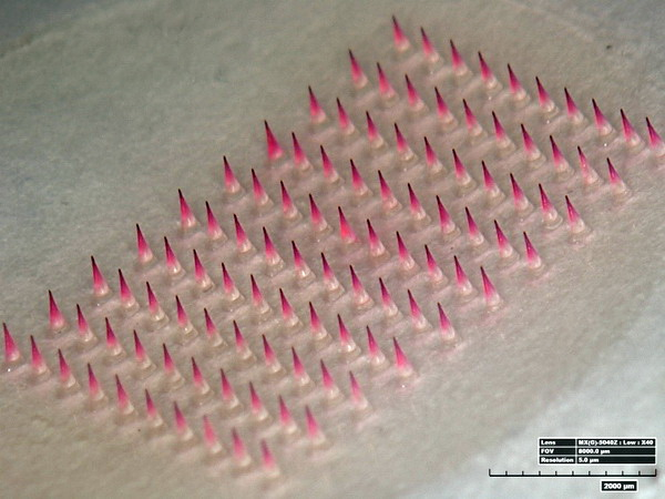 microneedles_patch