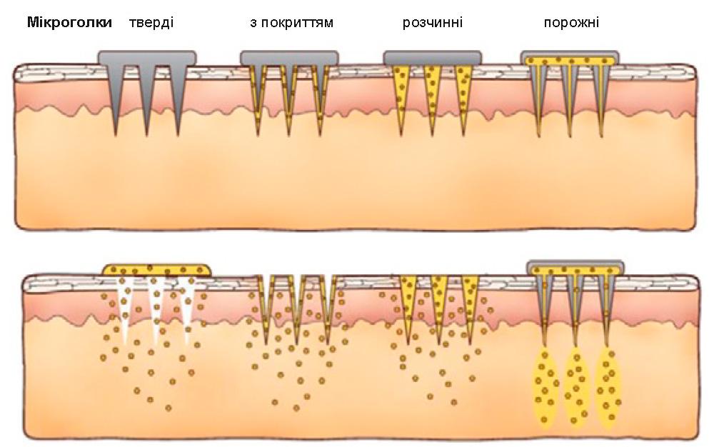 Типи мікроголок для доставки ліків